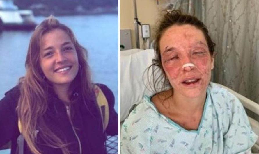 Por hacer un jabón a través de un tutorial de Internet, una joven se quemó los ojos