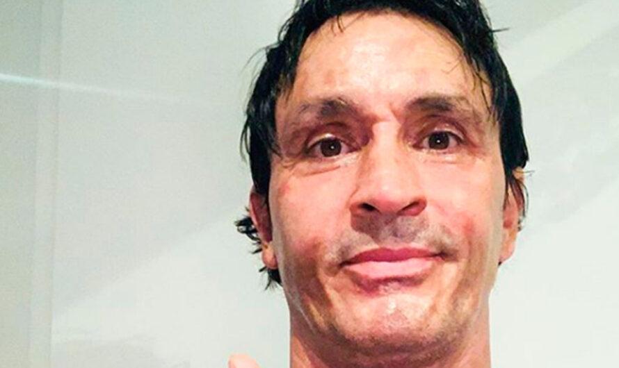 Sebastián Estevanez mostró su cara tras el accidente doméstico que sufrió
