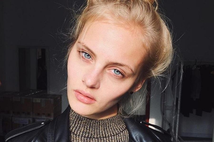 El misterio de la bella modelo rusa que cayó desnuda desde un tercer piso y ahora pelea por su vida