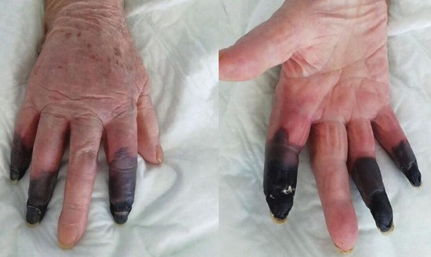 Amputan tres dedos a una mujer que desarrolló gangrena tras dar positivo por covid-19